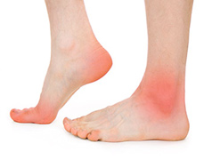 Foot Diseases & Treatment