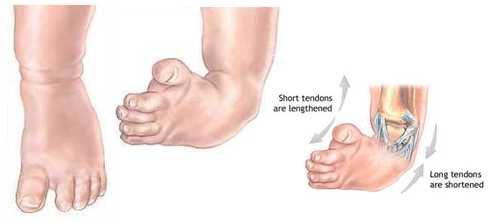 how to fix clubbed feet