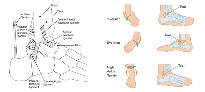 Chronic Lateral Ankle Pain Chicago Foot Care Clinic