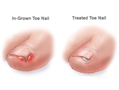 Nail Problems & Treatment