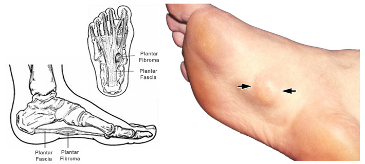 Lumps on bottom of foot