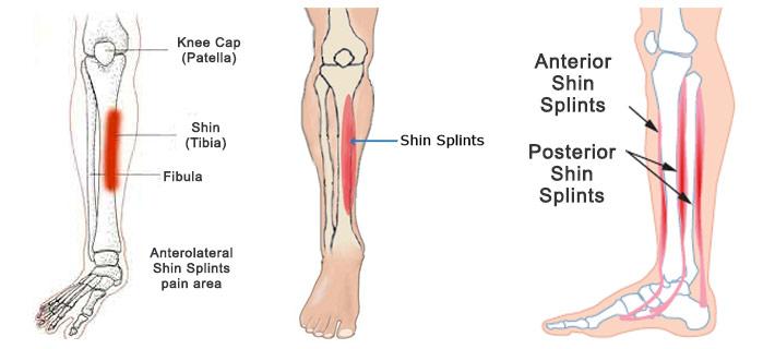 Proper Running Shoes For Shin Splints