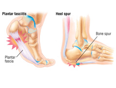 Plantar Fasciitis/Heel Pain Problems