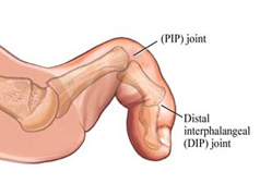 Bunion Problems & Treatment