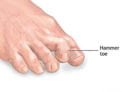 Hammer Toes Problems